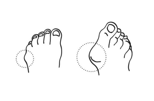 """Косточка у большого пальца и малая косточка у мизинца. Иллюстрация из книги """"Живые колени"""", Лабиринт, 2021"""