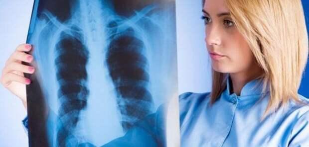 Определены три основные вида пневмонии
