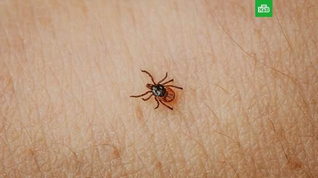 Инфекционист рассказала о симптомах укуса инфицированного клеща
