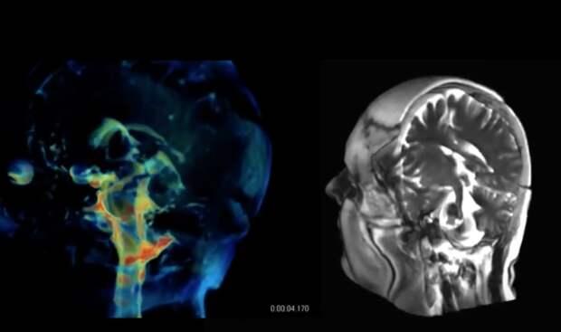 Студенты из Стэнфорда создали новую технологию 3D-визуализации мозга