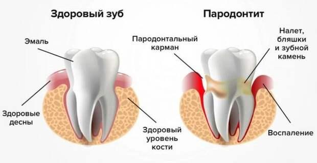 Как сохранить здоровье зубов до старости