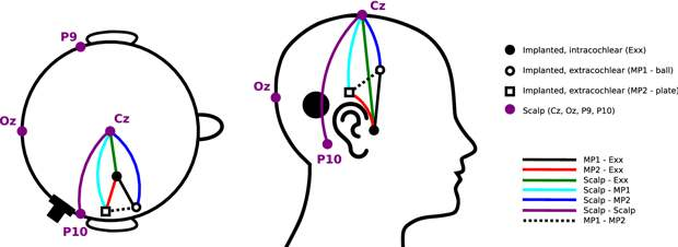 Кохлеарный имплант с ЭЭГ внутри для более точной настройки