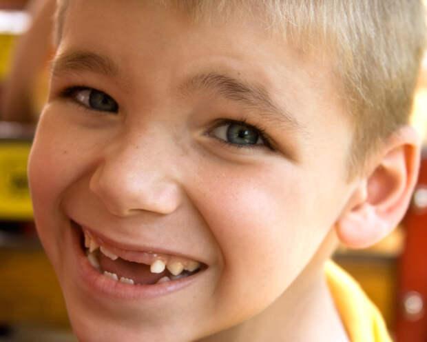 Осуществил мечту, лишившись зубов
