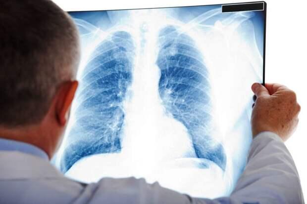 В Крыму снова рост заболеваемости пневмонией