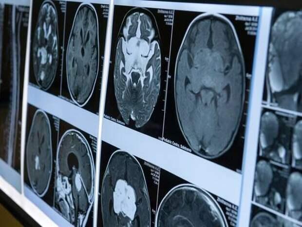 Ученые выяснили, как COVID-19 влияет на мозг