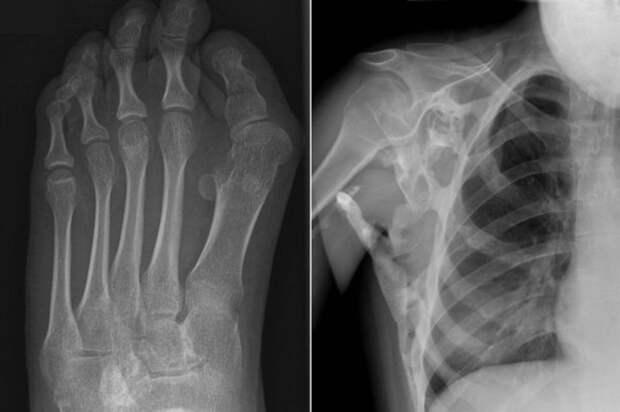 «Болезнь второго скелета»: врачи рассказали оредком генетическом недуге