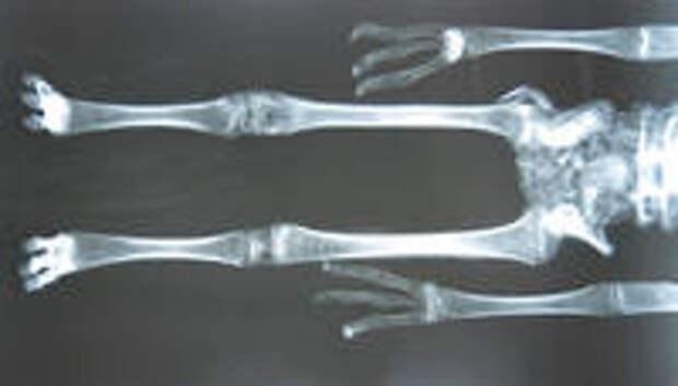 Альберт. Рентгенограмма
