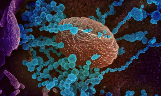 Учёные обнаружили способ, благодаря которому можно спрогнозировать тяжёлое течение коронавируса
