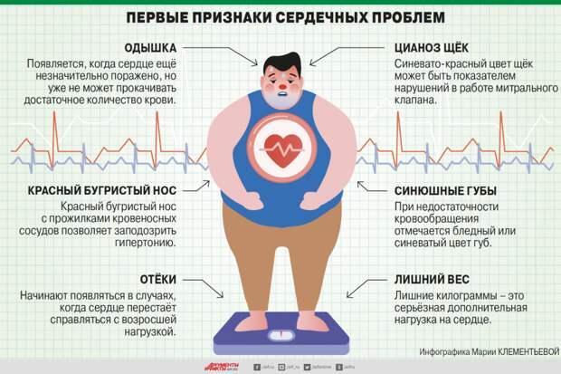 3 упражнения от инфаркта