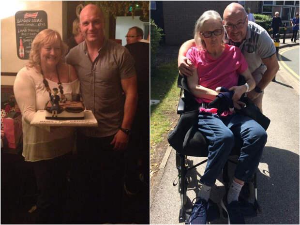 Муж показал на фото, как деменция за 4 года изменила его жизнерадостную жену
