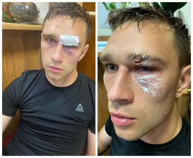 Футболист Роман Широков избил судью на любительском турнире