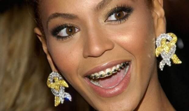 5 знаменитостей, которые носили брекеты в зрелом возрасте