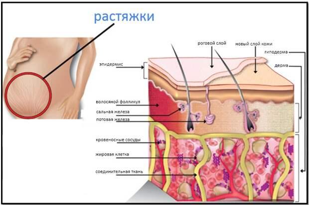 анатомия растяжек