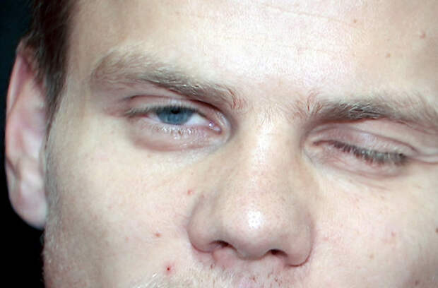 Александр Кокорин оказался на больничной койке