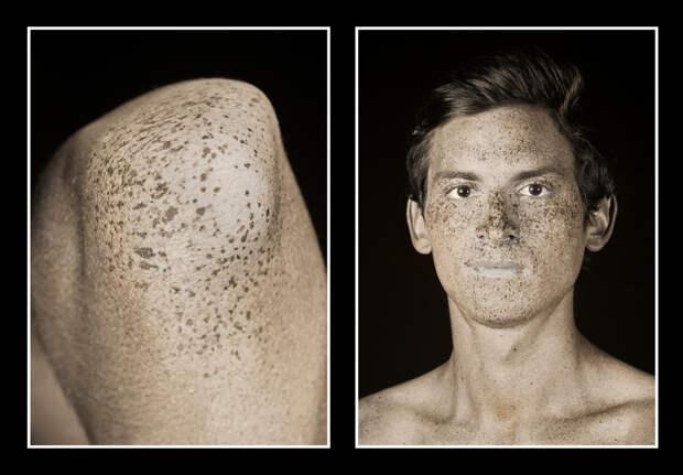Фотограф показал, как сильно солнце меняет кожу. После этого вы разлюбите загар!